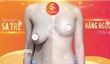 Tư vấn treo ngực sa trễ - Nâng ngực chảy xệ an toàn, đẹp tự nhiên, căng tròn